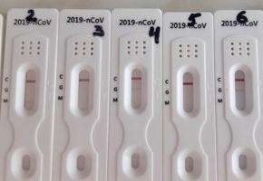 В больницы Гродненской области направят 10000 экспресс-тестов COVID-19