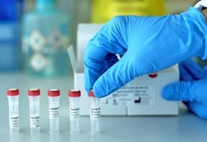В Лиде появится ПЦР-лаборатория. Она будет в том числе делать коронавирусные и ДНК-тесты